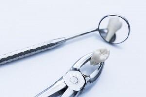 Removal of wisdom teeth dentist control.