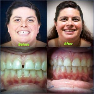 Before and after invisalign.