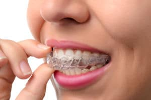 Dental Patient Holding Clear Braces