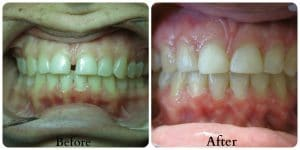 Before photo of yellowed teeth. After photo of whiter teeth and pinkish gums.