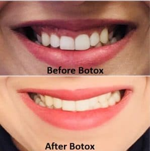 Before and after Botox therapy for treating a reverse or upside down smile
