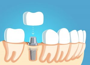 Same-day dental implants in Las Cruces, AZ.