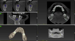 A digital CBCT impression of the mouth for the dental implant procedure.